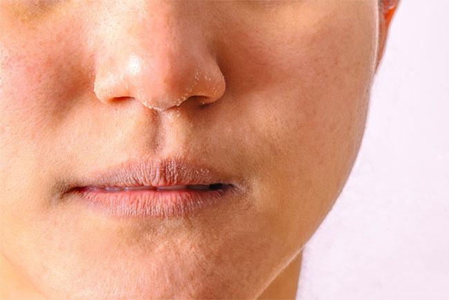 Da mặt khô: Nguyên nhân và giải pháp điều trị